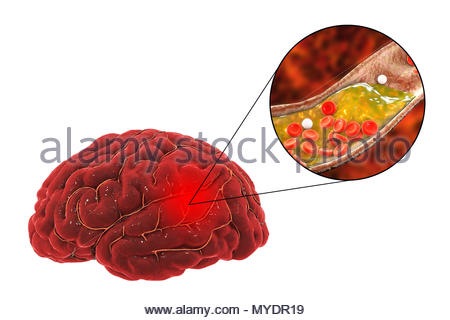 treatment-and-prevention-of-stroke-due-to-atherosclerosis-conceptual-illustration-showing-an-arterial-blockage-expanded-view-at-upper-right-causing-a-stroke-cerebrovascular-accident-cva-this-stroke-is، سکته مغزی